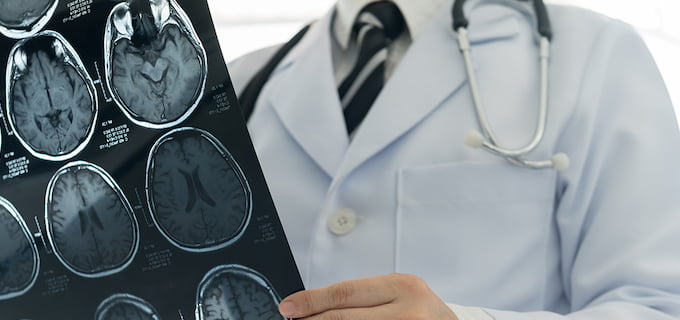 neurocirugia-scanner